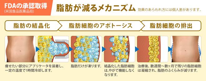 FDAの承認取得 (米国食品医薬品局) 脂肪が減るメカニズム 効果のあらわれ方には個人差があります。脂肪の結晶化/脂肪細胞のアポトーシス/脂肪細胞の排出/痩せたい部分にアプリケータを装着し、 一定の温度で1時間冷却します。/脂肪だけが凍ります。/結晶化した脂肪細胞 は、やがて機能しなく なります。/治療後、数週間〜数ヶ月で残りの脂肪細胞 は凝縮され、脂肪のふくらみが減ります。